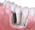 Rancho Cucamonga Implant Dentistry